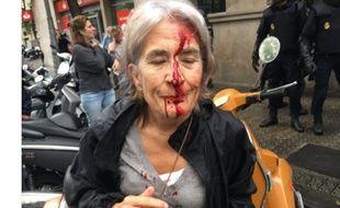 Une dame le visage en sang en Catalogne le 1er octobre 2017.