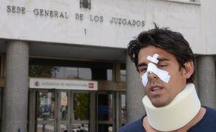 Le joueur de tennis Thomas Drouet, sparring-partner de Bernard Tomic, après son agression à Madrid, le 6 mai 2013.