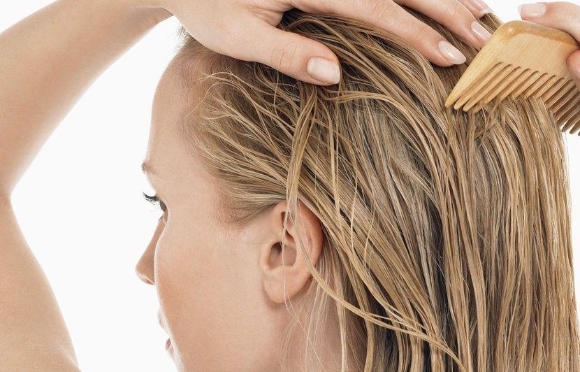 Perte totale des cheveux chez la femme
