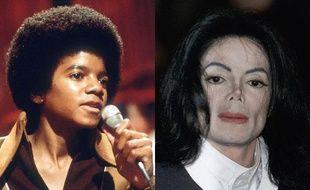 La chirurgie esthétique  Si Michael Jackson ne reconnaît avoir subit que deux rhinoplasties, sa métamorphose physique fait la une de la presse people depuis le milieu des années 80. Le blanchiment de sa peau, qu'il explique par une maladie (le vitiligo), a probablement contribué à populariser cette pratique dangereuse.
