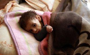 Comme Hala, fillette âgée de deux ans, plus de 1.100 enfants souffriraient de malnutrition aiguë.