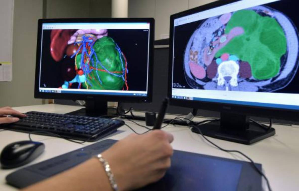 """Un employé de """"Visible Patient"""", start-up émanant de l'Institut de recherche contre les cancers de l'appareil digestif (Ircad), le 25 janvier 2016 à Strasbourg – PATRICK HERTZOG AFP"""