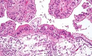 Une tumeur ovarienne vue au microscope.