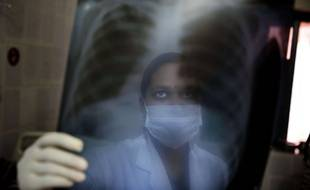 Une infirmière indienne scrute la radiographie du thorax d'un patient suspecté d'avoir la tuberculose.