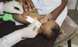 Un enfant souffrant de sous-nutrition.