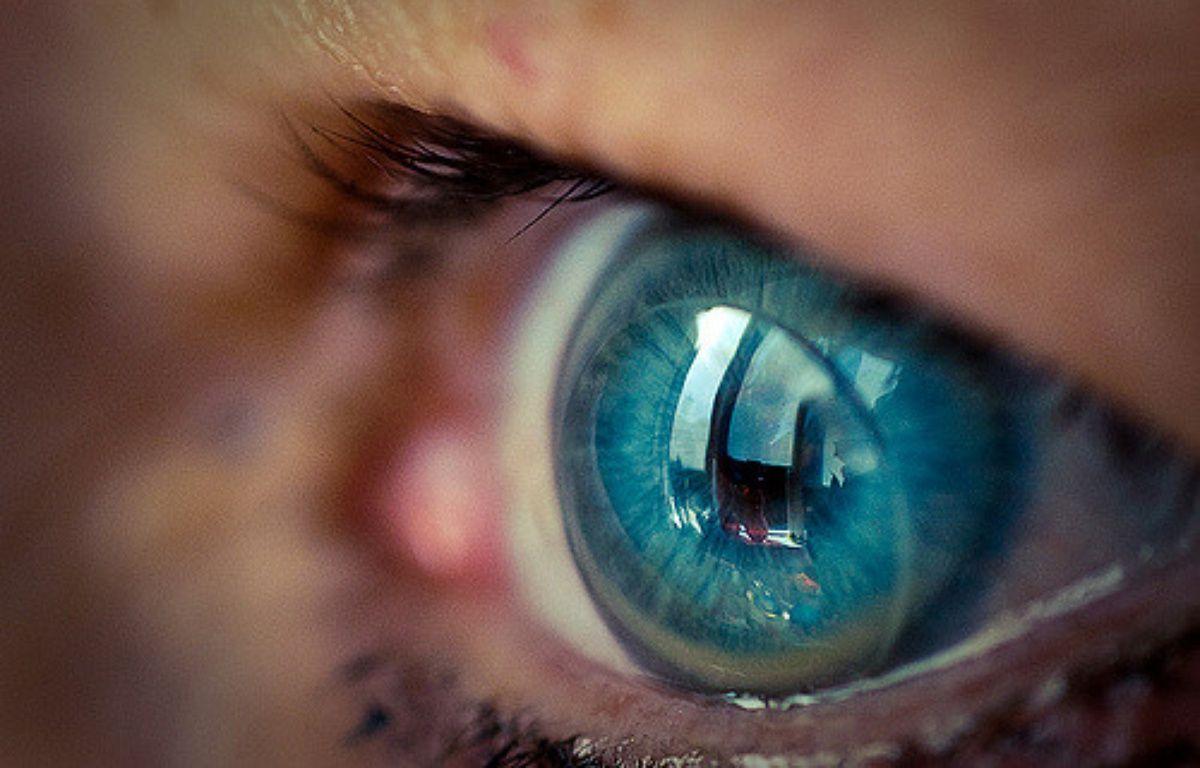 La patiente ne s'était pas rendu compte qu'elle avait 27 lentilles de contact dans l'oeil (illustration). – Flickr