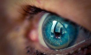La patiente ne s'était pas rendu compte qu'elle avait 27 lentilles de contact dans l'oeil (illustration).