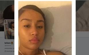 Cette jeune femme a eu la grande surprise de découvrir que son ombre ressemblait au profil de la chanteuse Rihanna