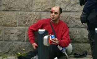 L'homme blessé par un coup de matraque le 24 mars boulevard Amiral-Courbet à Nantes.  / AFP / L.Venance