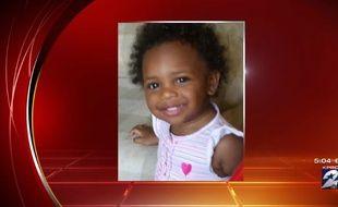 Une petite fille de 19 mois a été brûlée dans un four allumé par ses frères.