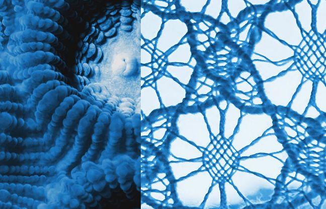A la izquierda hay un coral montastrea carvernosa, a la derecha del cordón en el punto del alma (vista bajo el microscopio).