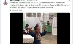 Le petit Ahmad a perdu sa jambe lorsqu'il était bébé après avoir été touché par une mine.