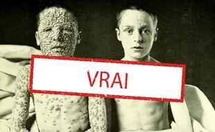 Cette photo montrant deux enfants de 13 ans atteints de la variole est authentique