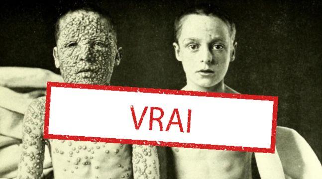 Oui, cette photo montrant deux enfants atteints de la variole est véridique