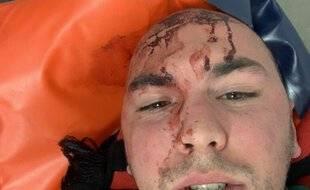 Rémi a été blessé à la tête pendant la mi-temps du derby du Nord