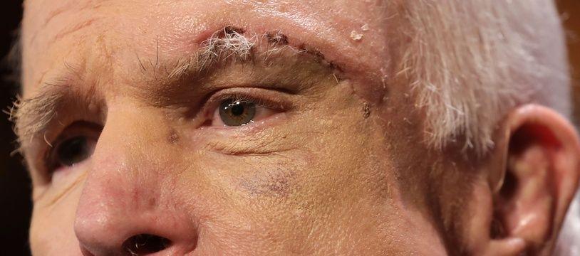 Le sénateur républicain John McCain, le 27 juillet 2017.