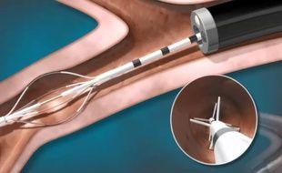 Dispositif inséré dans les bronches à l'aide d'un bronchoscope flexible.