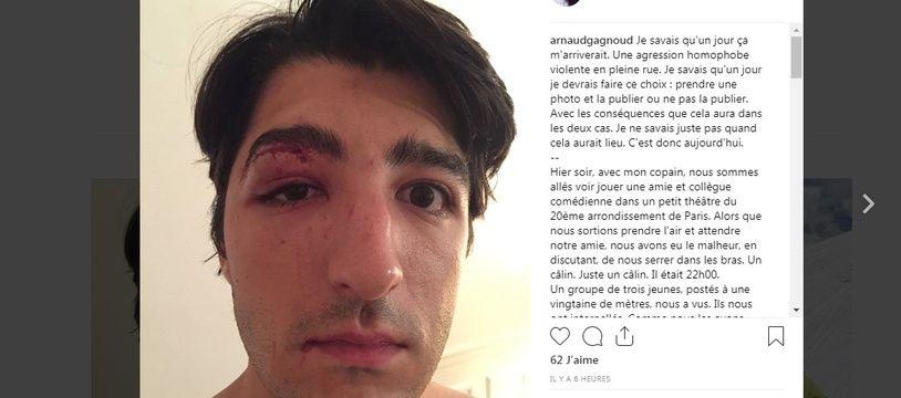 Le comédien Arnaud Gagnoud a raconté sur les réseaux sociaux l'agression homophobe dont son ami et lui ont été victimes
