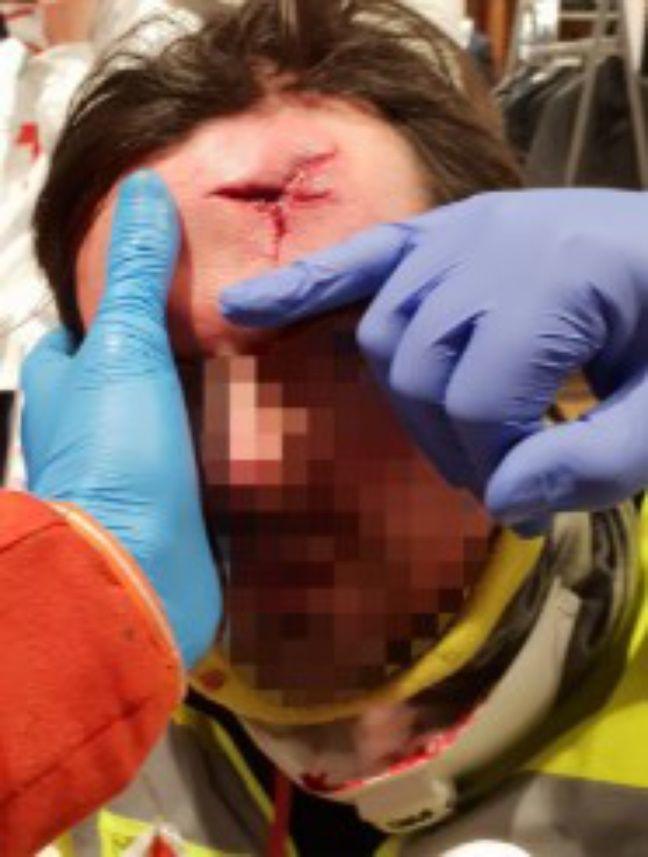 L'observateur des violences policières de Toulouse a été atteint au front lors de l'acte 12.