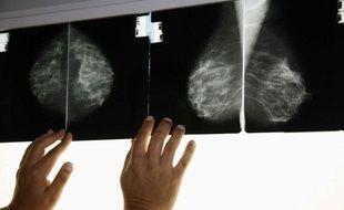 Une radio effectuée dans le cadre d'un dépistage du cancer du sein