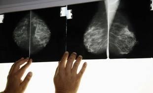 Une radio effectuée dans le cadre d'une mammographie pour dépister le cancer du sein.