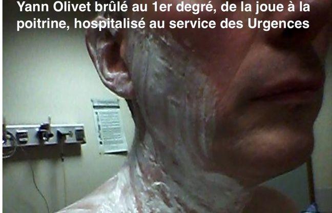 Yann Olivet aux Urgences après l'attaque au chocolat chaud.