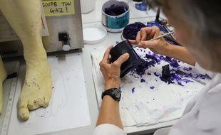 Fabrication d'une prothèse au Centre Pillet.