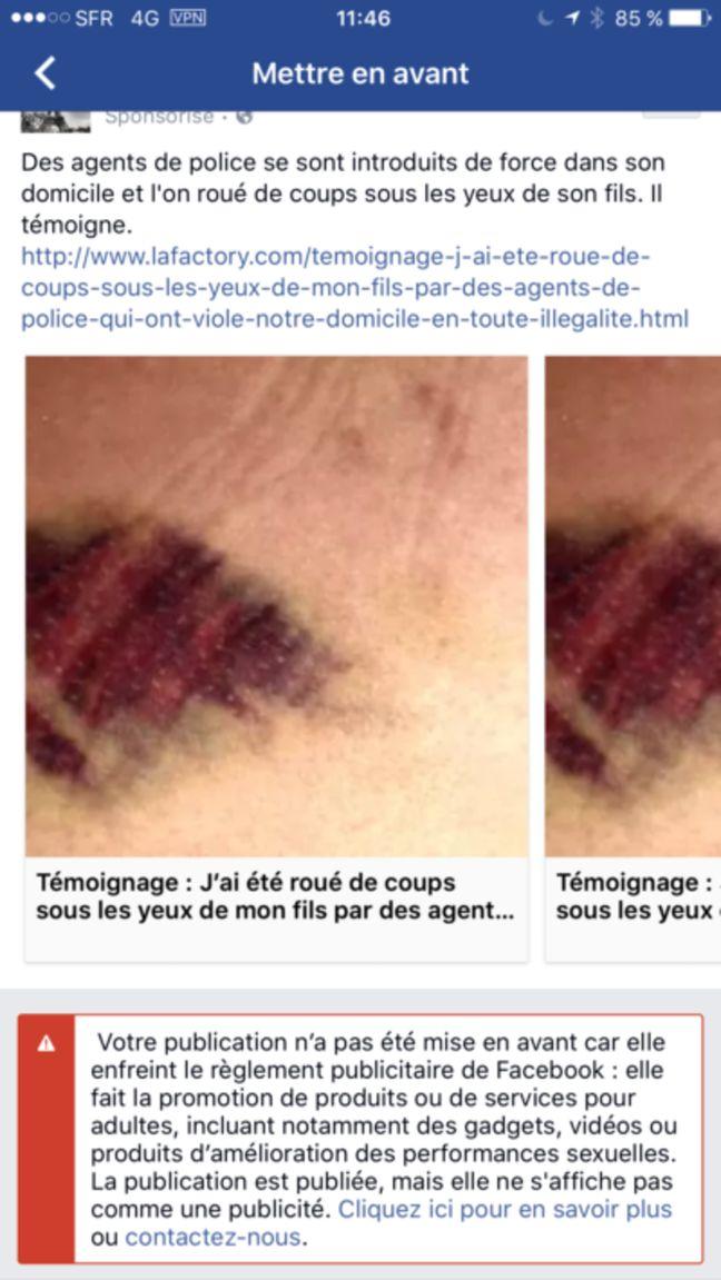 Mediapart a tenté, en vain, de sponsoriser sur Facebook le témoignage d'un homme battu par des policiers.