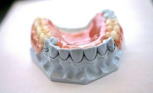 Un moule pour prothèse dentaire. Illustration