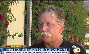 Todd Fassler, un citoyen américain devra débourser 153.000 dollars après avoir été mordu par un serpent alors qu'il voulait faire un selfie
