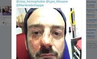 Guillaume Mélanie a été victime d'une agression homophobe ce mardi soir