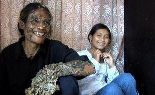 """Un villageois indonésien surnommé """"l'Homme-arbre"""" en raison des verrues géantes qui lui couvrent le corps comme de l'écorce pourrait se voir interdire de partir aux Etats-Unis pour y être soigné, a rapporté mardi un article de presse à Jakarta."""