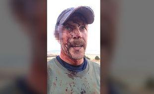 Todd Orr a survécu à l'attaque d'un ours et de ses deux enfants aux États-Unis.