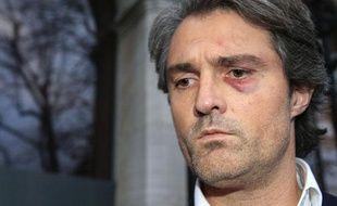 Le Docteur Stéphane Delajoux, au lendemain de l'agression dont il a été victime, samedi 12 décembre 2009