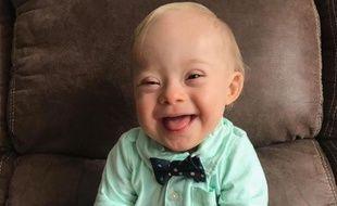 Lucas Warren, un bébé d'un an atteint de trisomie 21, est le nouveau visage de la marque Gerber.