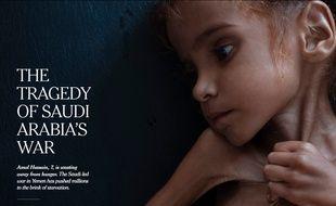 Amal Hussain, 7 ans, est morte de malnutrition au Yémen