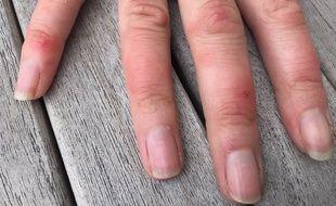 Des lésions cutanées de type rougeurs gonflées sur le dos des mains et des pieds pourraient être un symptôme du Covid-19, comme on le voit ici sur les lésions observées par le Dr Oliverès-Ghouti sur l'une de ses patientes.