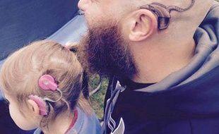 Pour soutenir sa fille sourde, Alistair Campbell s'est fait tatouer le même implant cochléaire que sa fille. La photo a fait le tour du Web.