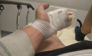 Cédric B. a les mains brûlées au deuxième degré après l'explosion de la batterie de sa cigarette électronique.