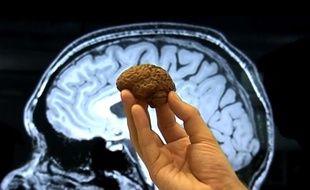 Illustration: le cerveau humain.