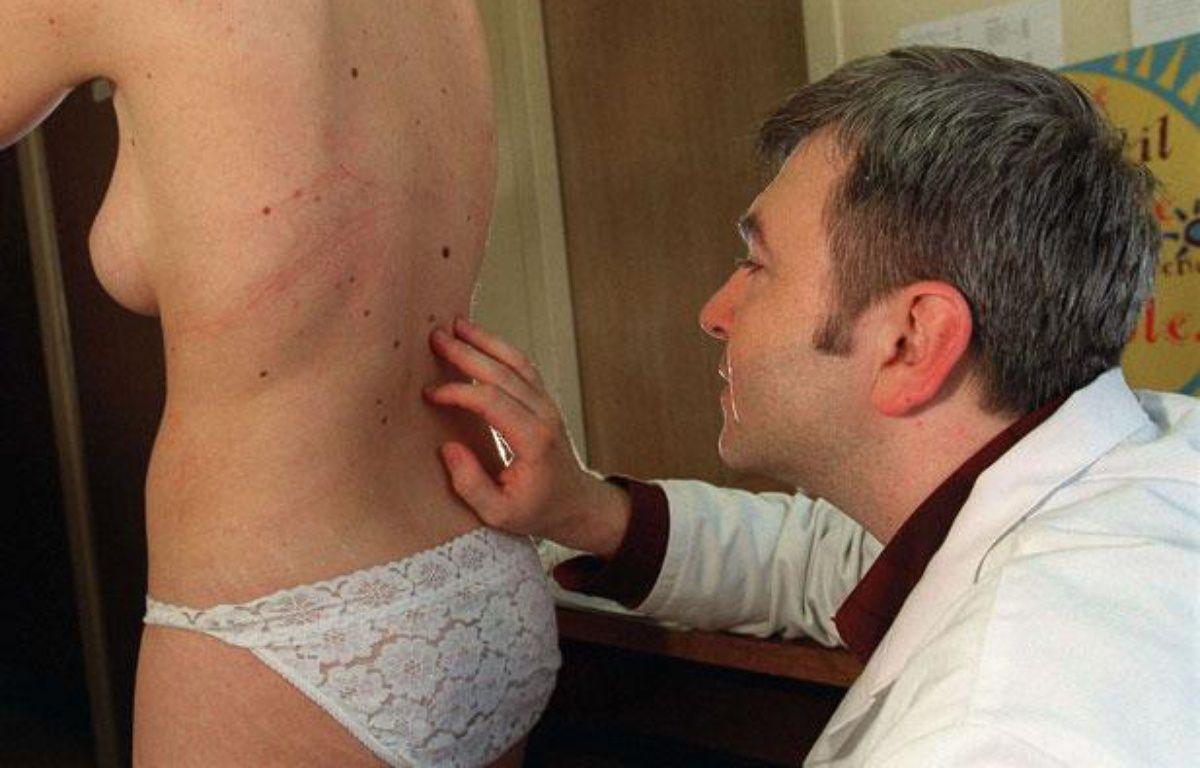 Un dermatologue pratique un dépistage du cancer de la peau. – DURAND FLORENCE/SIPA