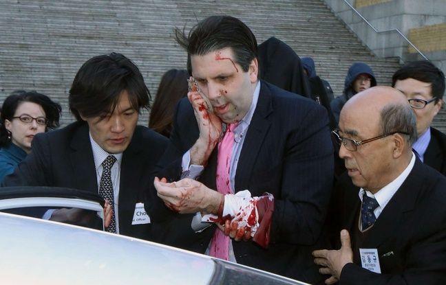 L'ambassadeur des Etats-Unis en Corée du Sud, Mark Lippert, a été blessé par un homme armé d'une lame de rasoir, le 5 mars 2015.