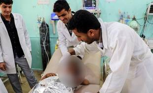 Des médecins soignent un enfant blessé dans une frappe aérienne contre un bus au Yémen, le 8 août 2018.