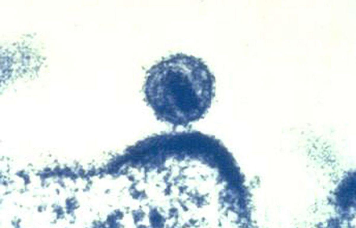 Le virus du sida infecte une cellule humaine. – AP/SIPA