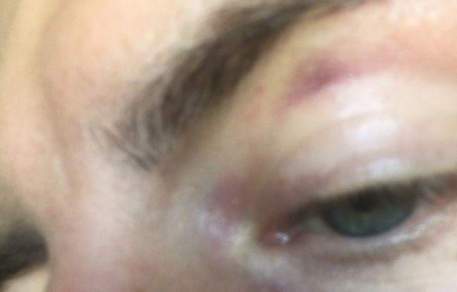 L'œil tuméfié d'un supporter strasbourgeois qui dit avoir été agressé à Lyon