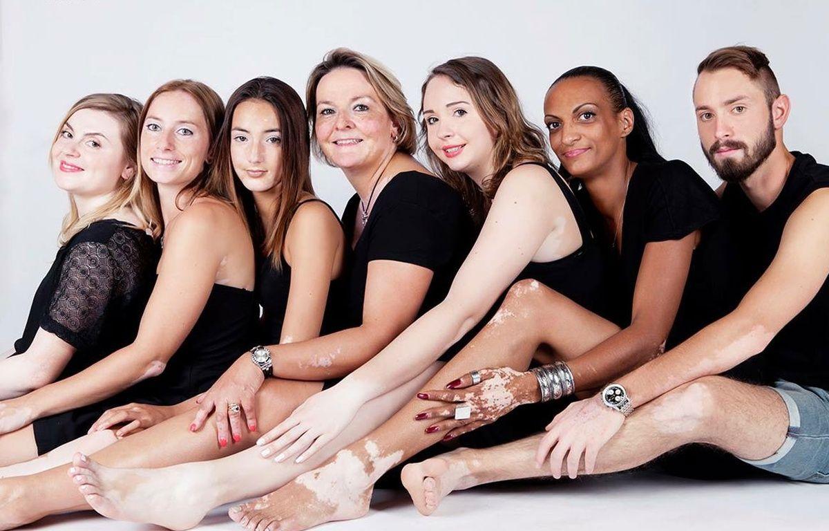 Durant cette séance photo qui les a aidées à accepter leur corps, Candice (3ème à gauche) et Amandine (au centre) ont posé avec d'autres camarades atteints eux aussi de vitiligo. – Charlotte Cavaleiro / Studio SP