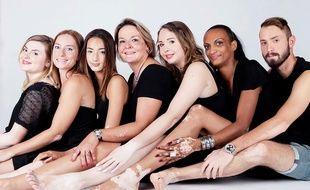 Durant cette séance photo qui les a aidées à accepter leur corps, Candice (3ème à gauche) et Amandine (au centre) ont posé avec d'autres camarades atteints eux aussi de vitiligo.