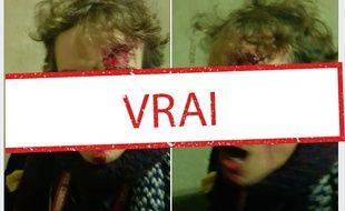 Les photos virales du doctorant blessé par les forces de l'ordre, le 21 janvier 2020.