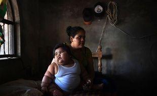 Luisito, 10 mois, qui souffre de graves problèmes d'obésité, et sa mère Isabel Pantoja, dans leur maison de Tecoman, au Mexique, le 8 novembre, 2017.