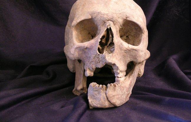 Le crâne du soldat napoléonien comportait des parties manquantes en raison d'une grave blessure.